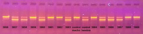 Imagen de una electroforesis en agarosa de la amplificación por PCR del gen CHD que permite sexar aves.