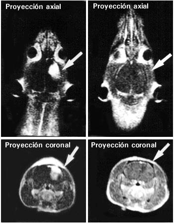 Imagen de resonancia magnética en proyecciones axial y coronal del cerebro de una rata antes (izquierda) y después (derecha) del tratamiento con delta-9-tetrahidrocannabinol durante 7 días. La flecha señala el glioblastoma erradicado.