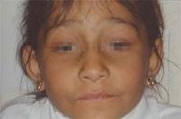 Aspecto facial en una niña con ptosis palpebral y deficiencia visual congénita.