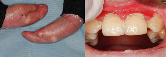 Paciente de 8 años de edad que padece Epidermolisis Bullosa, observesé las secuelas a nivel de manos, así como el estado de salud oral del  paciente.