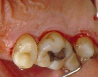 Periodontitis. Se aprecia inflamación de la encía y presencia de bolsas periodontales.