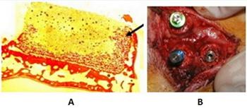 (3) A) Imagen histológica de un bloque 3D de monetita de 4mm de altura, atornillado sobre calota de conejo, a las 4 semanas de su colocación. Se observa neoformación ósea a lo largo de todo el bloque, llegando incluso a la región más superior en el lado derecho (flecha negra). B) Imagen de la calota de un conejo en el momento de la colocación de implantes endoóseos en el interior de los bloques de monetita, demostrando una excelente estabilidad.