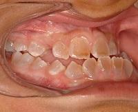 Niño con dentinogénesis imperfecta y  maloclusión clase III. / Joaquín de Nova.