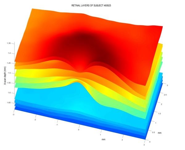 Capas de la retina de uno de los pacientes de la investigación. /  Instituto de Tecnología del Conocimiento UCM