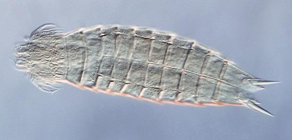 La especie Echinoderes brevipes, tomada con microscopía óptica diferencial de contraste de interferencia. / Diego Cepeda