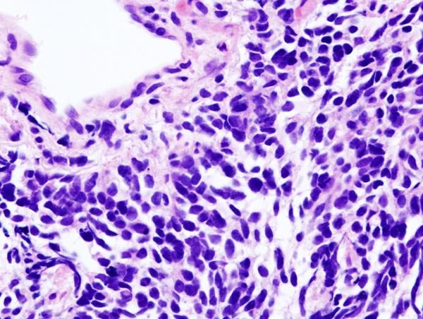 Carcinoma de pulmón de células pequeñas. / KGH.