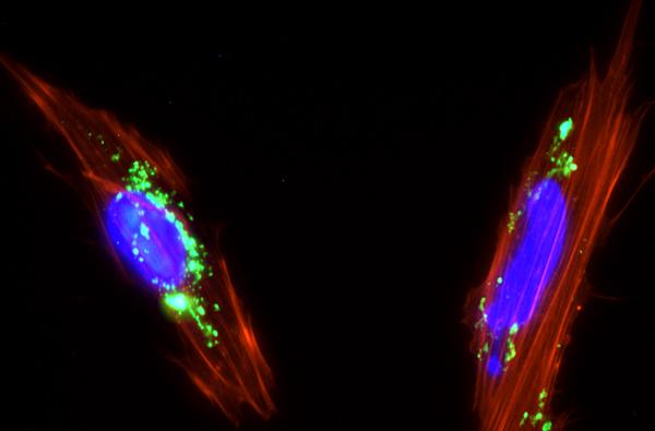Células mesenquimales de placenta con nanopartículas de sílice mesoporosa (color verde) internalizadas en su citoplasma. / Juan Luis Paris.