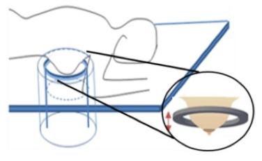 Representación esquemática de un sistema de Tomografía por Ultrasonidos (USCT). Se observa de la cuba de agua donde se introduce la mama rodeada de un anillo de transductores que realizan adquisiciones hasta conseguir la imagen 3D de la mama completa. (Fuente: Tesis Doctoral de Mailyn Pérez Liva, 2017)