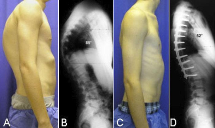 Los focos en la médula espinal el departamento de pecho
