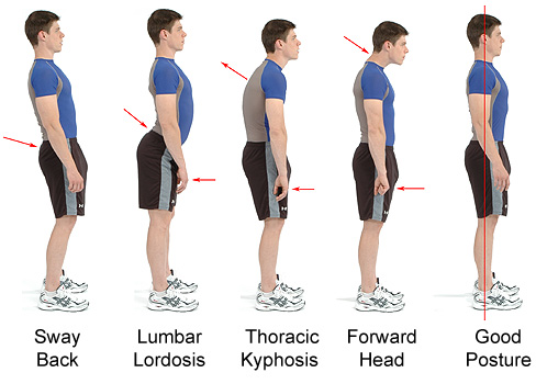 Los métodos fisioterápicos del tratamiento de la columna vertebral
