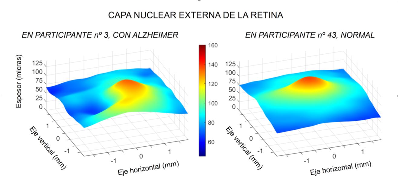 Comparación de dos capas de la retina de pacientes con y sin alzhéimer. / Jáñez García et. Al.
