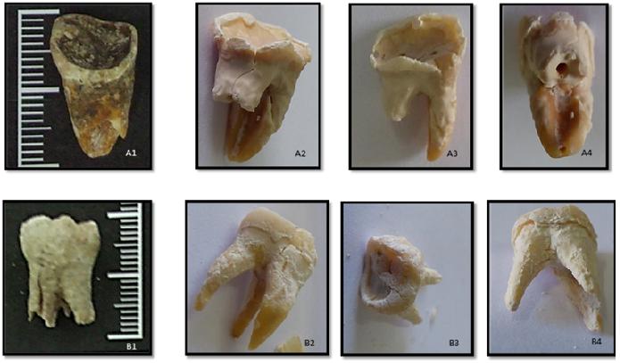 Dos dientes antes del proceso de extracción (A1 y B1) y después del proceso de extracción del material genético (A2. A3, A4; B2, B3 y B4). / Cláudia Gomes.